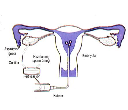 Microinjection (ICSI)